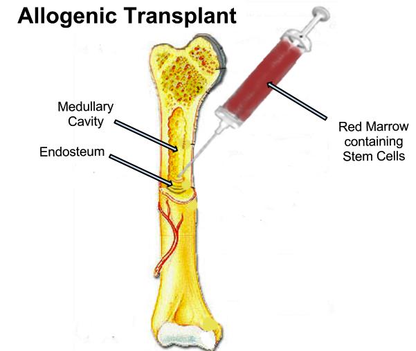 Key Difference - Autologous vs Allogeneic Stem Cell Transplant