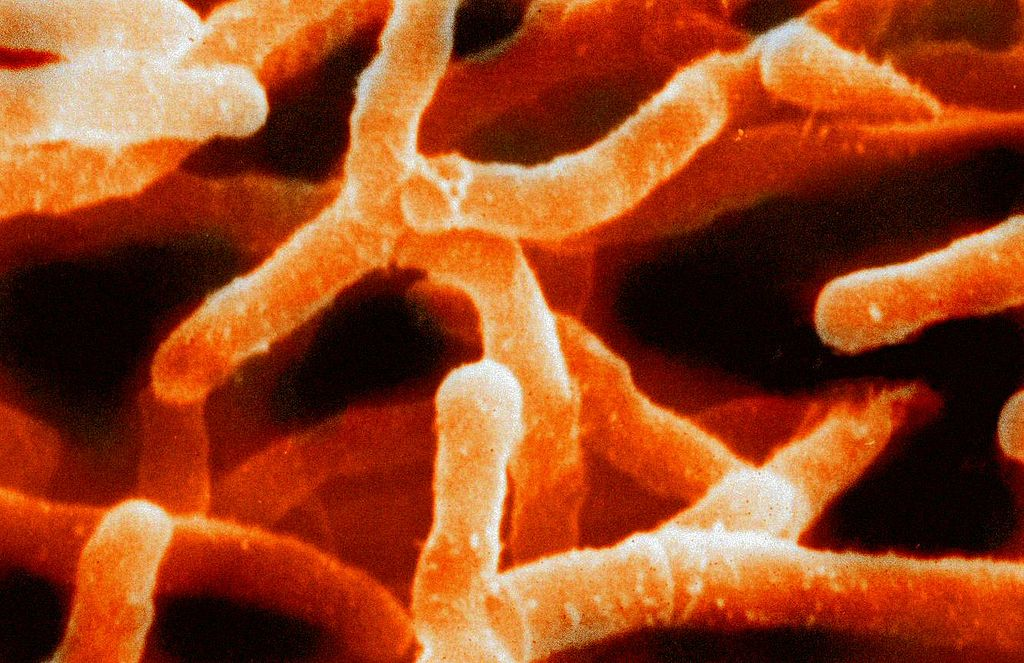 Key Difference - Actinomyces vs Actinomycetes
