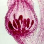 Difference Between Carposporophyte and Tetrasporophyte