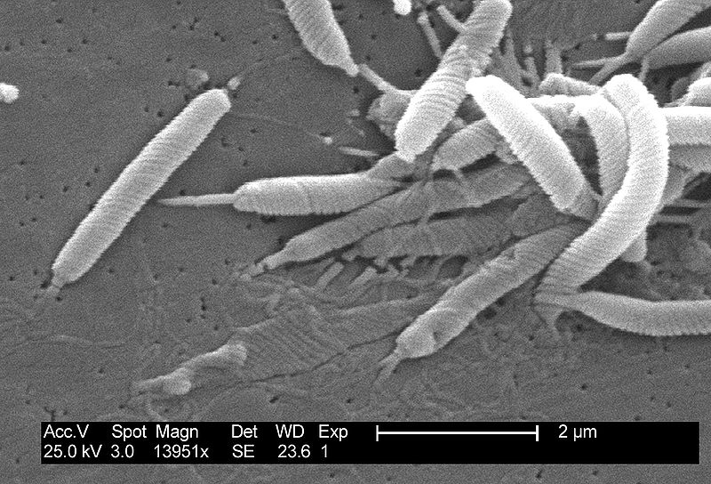 Key Difference - Campylobacter vs Helicobacter