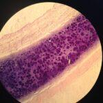Difference Between Acidophilic and Basophilic