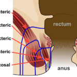 Difference Between Anastomosis and Fistula