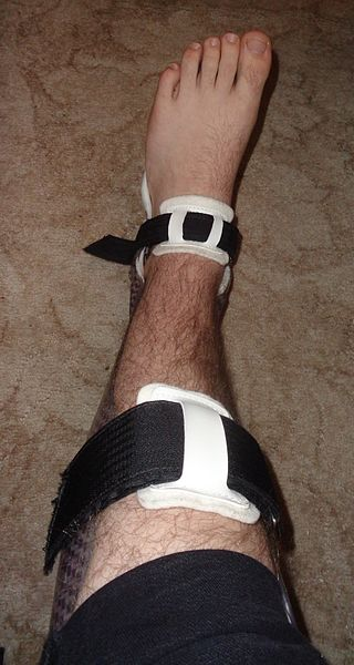 Key Difference - Orthosis vs Prosthesis