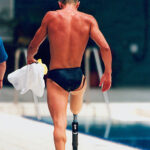 Difference Between Orthosis and Prosthesis