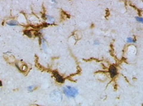 Key Difference - Microglia vs Macroglia