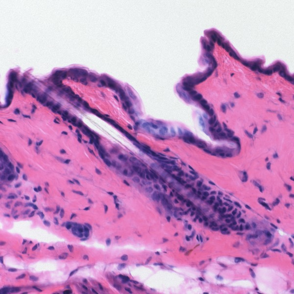 Difference Between Progressive and Regressive Staining