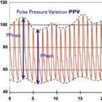 Difference Between Pulse and Pulse Pressure