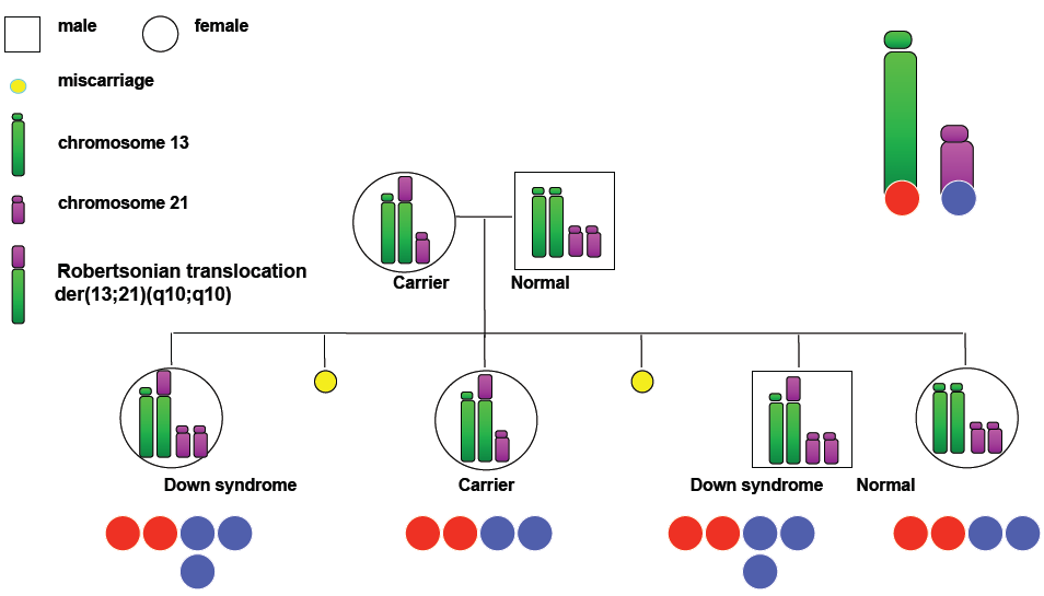 Difference Between Robertsonian Translocation and Isochromosome