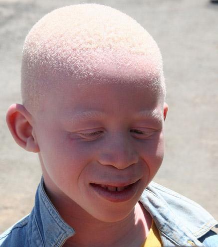 Key Difference - Albinism Melanism vs Leucism