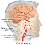 Difference Between Coronary and Carotid Artery