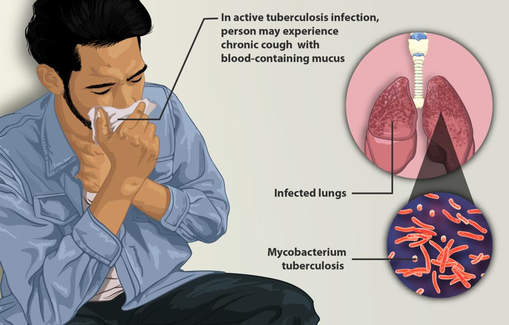 Difference Between Mycobacterium Tuberculosis and Nontuberculous Mycobacteria