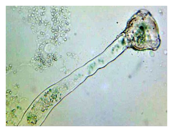 Difference Between Generative Nucleus and Pollen Tube Nucleus