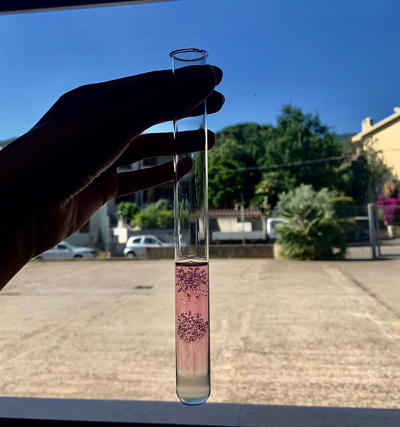 Key Difference - Plant vs Animal DNA Extraction