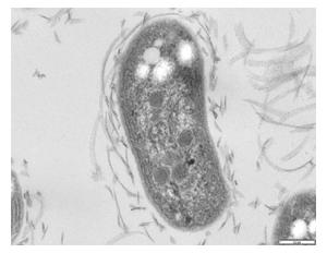Key Difference - Nitrosomonas vs Nitrobacter