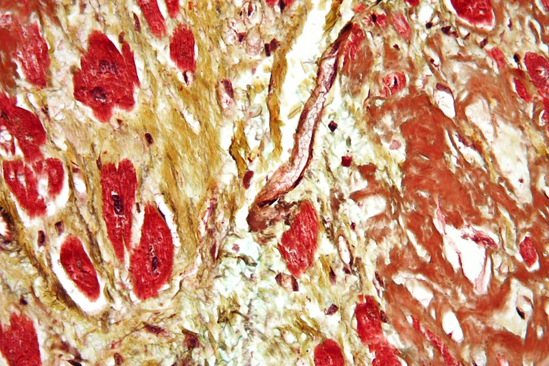 Difference Between Regeneration and Fibrosis