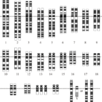 Difference Between Monogenic Disorders and Chromosomal Disorders