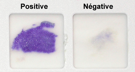 Difference Between Positive and Negative Oxidase Test
