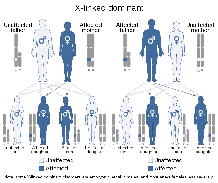 Difference Between X Linked Dominant and X Linked Recessive