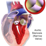 Difference Between Aortic Stenosis and Coarctation of Aorta