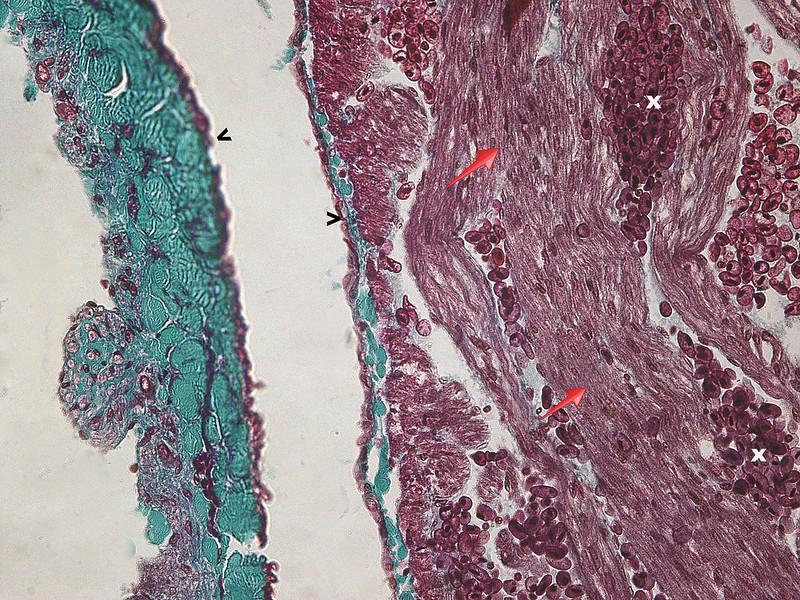 Difference Between Sinus Venosus and Conus Arteriosus