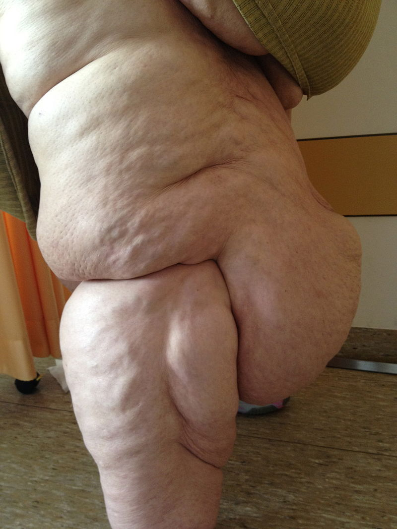 Difference Between Lipedema and Lymphedema