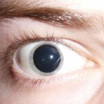 What is the Difference Between Cycloplegia and Mydriasis