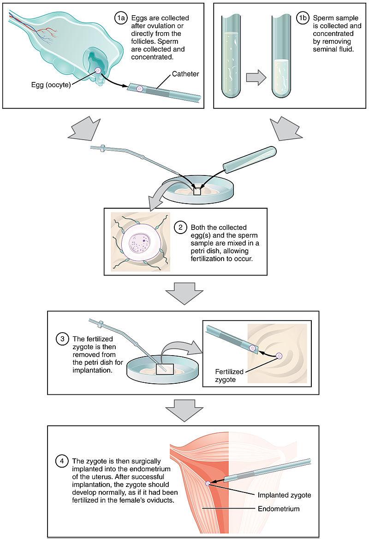 IVF Zift Process