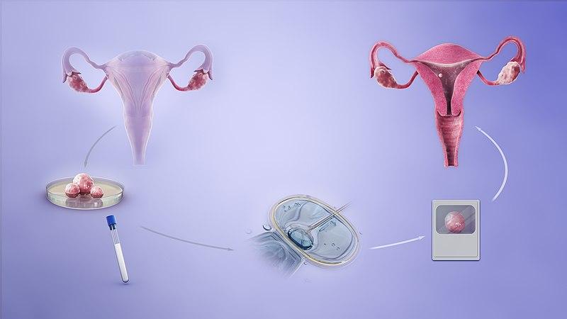 Simple IVF Process