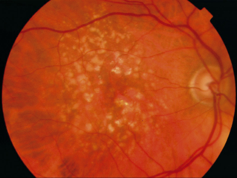 Age-related macular degeneration 'Wet Type'.